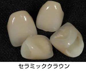 セラミックのクラウンを被せて歯並びを整える方法