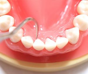 もしも、むし歯治療をすることになったら ~理想のむし歯治療とは?~