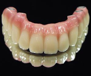 はり入れ歯に対して非常に懐疑的になっておられます。