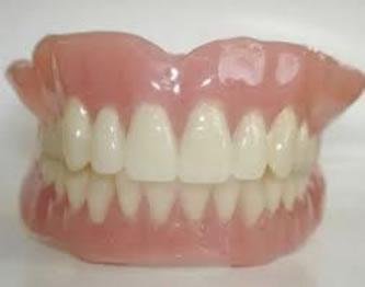 普通印象法レジン床義歯