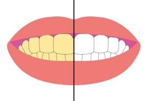 【これまでの歯の色をお家で気軽に刷新】