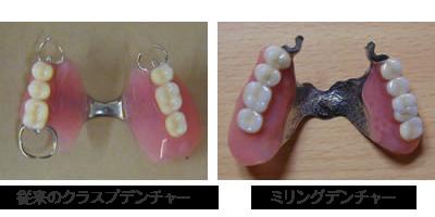 パーシャル・パラレル・ミリングデンチャーと他のテレスコープ義歯との違い