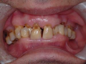 噛みあわせのずれは身体のアライメント(軸)のずれを引き起こし、 頭痛、肩こり、腰痛など様々な体の不調を引き起こします。