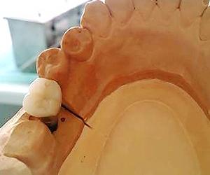 まず歯を失った原因を把握