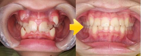 八重歯を治したい(八重歯を非抜歯で治したケース)