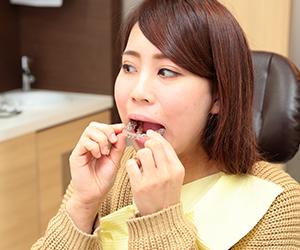 顎関節症の患者様でなくとも、理想的な噛み合わせを獲得することを前提に、矯正治療と精密義歯の製作を進めており、そのノウハウが数多く蓄積されています。れ