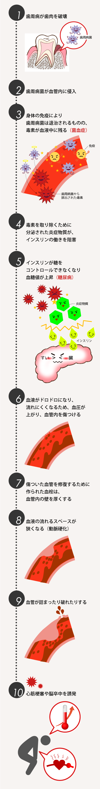 tooth04_01