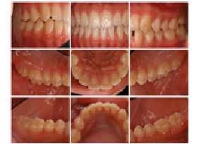 tooth09_06
